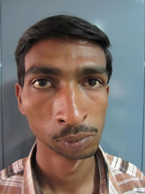 Correction Of Post Ankylotic Facial Asymmetry With Bimaxillary